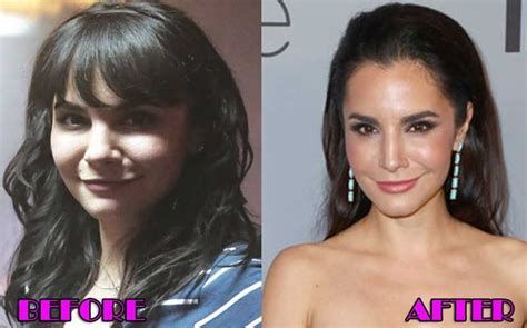 Martha Higareda Plastic Surgery Before and After Photo